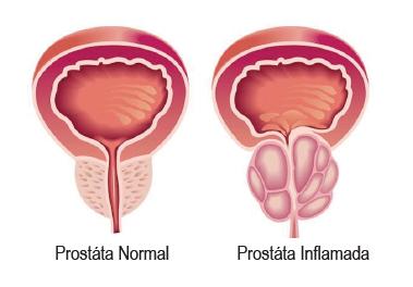 Prostatitis a férfiak szívében)